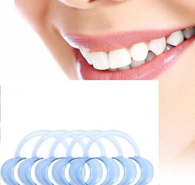 Rétracteurs de joues dentaires